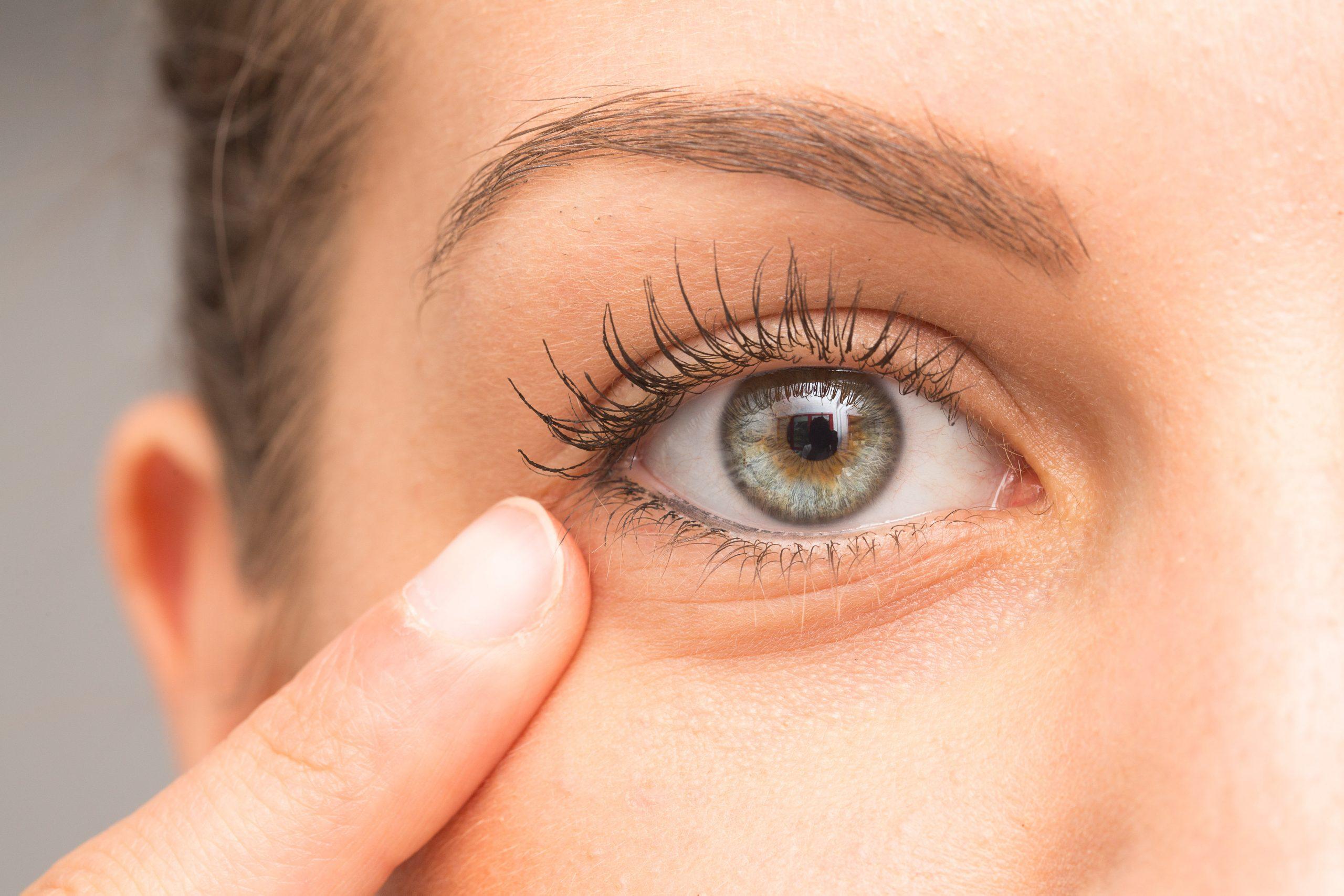 Ojeras, la principal pesadilla estética de las pacientes más jóvenes